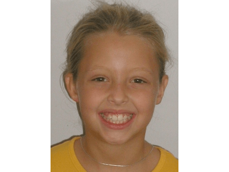 Young girl before braces