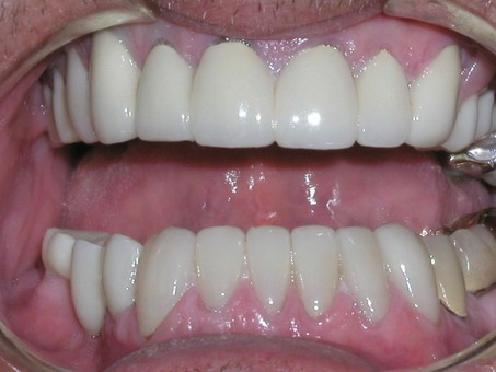 Smile fully restored with dental crowns porcelain veneers and partial denture