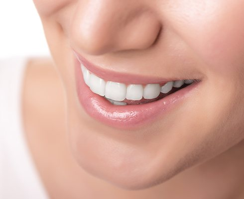 Smile with cosmetic dental bonding